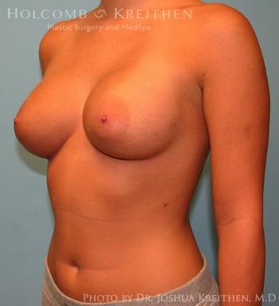 Breast Augmentation Gallery - Patient 6236594 - Image 4