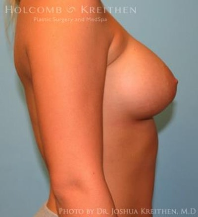 Breast Augmentation Gallery - Patient 6236594 - Image 6