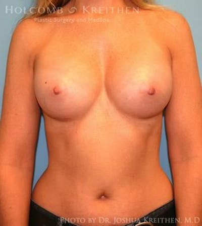 Breast Augmentation Gallery - Patient 6236595 - Image 2
