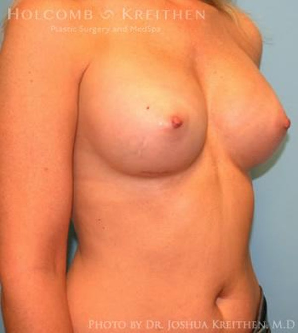 Breast Augmentation Gallery - Patient 6236595 - Image 4