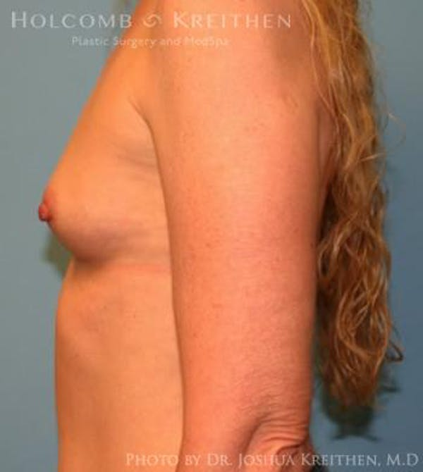 Breast Augmentation Gallery - Patient 6236595 - Image 5