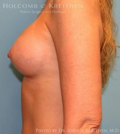 Breast Augmentation Gallery - Patient 6236595 - Image 6