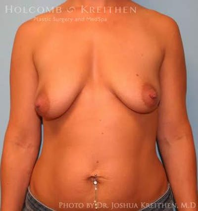 Breast Augmentation Gallery - Patient 6236597 - Image 1