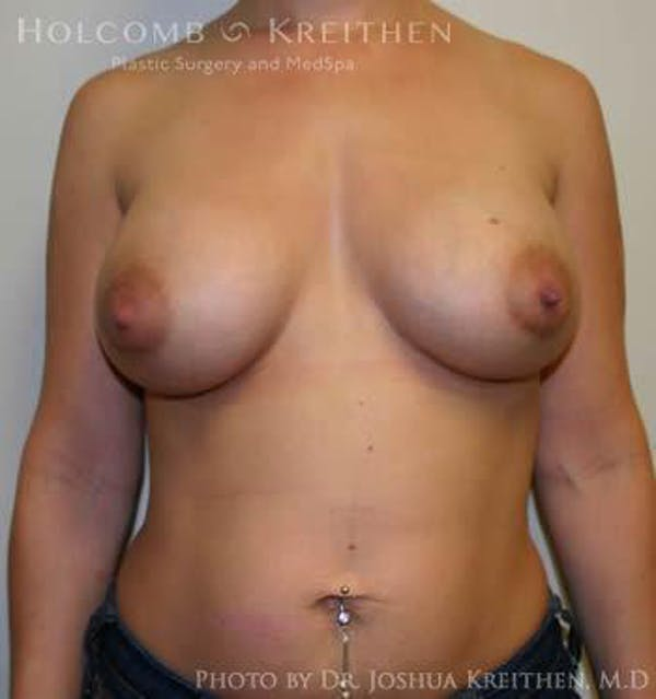Breast Augmentation Gallery - Patient 6236597 - Image 2