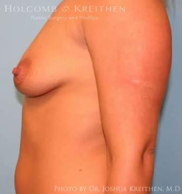 Breast Augmentation Gallery - Patient 6236597 - Image 5