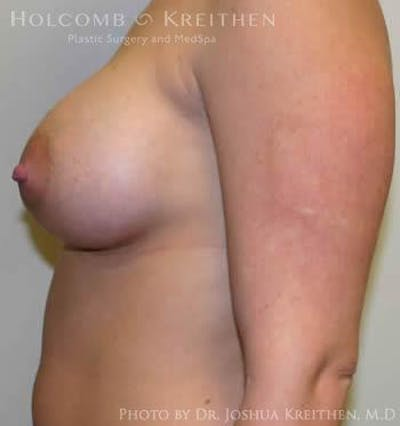 Breast Augmentation Gallery - Patient 6236597 - Image 6
