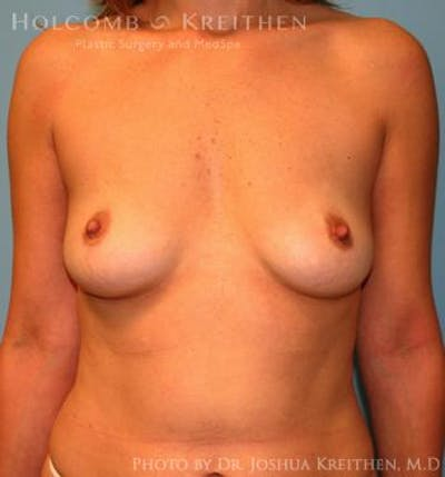 Breast Augmentation Gallery - Patient 6236598 - Image 1