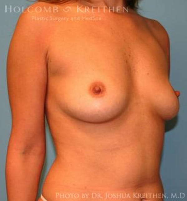 Breast Augmentation Gallery - Patient 6236598 - Image 3