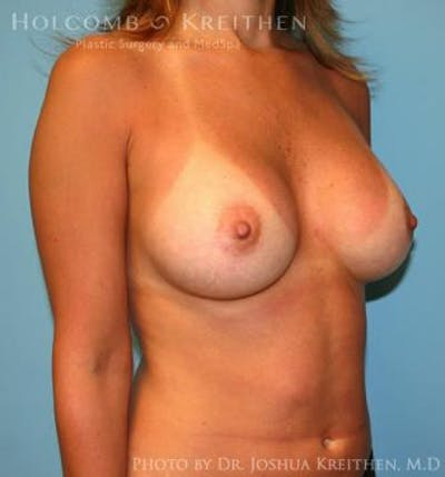 Breast Augmentation Gallery - Patient 6236598 - Image 4