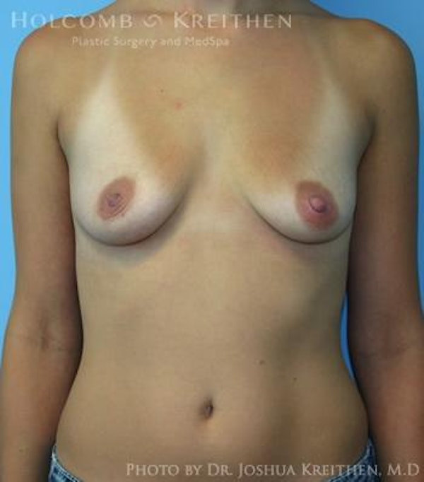 Breast Augmentation Gallery - Patient 6236600 - Image 1