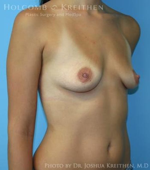 Breast Augmentation Gallery - Patient 6236600 - Image 3