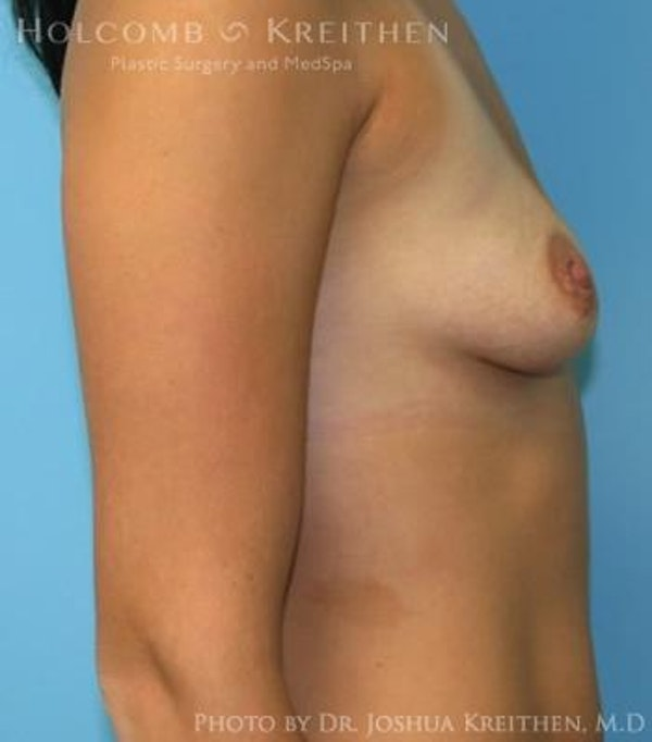 Breast Augmentation Gallery - Patient 6236600 - Image 5
