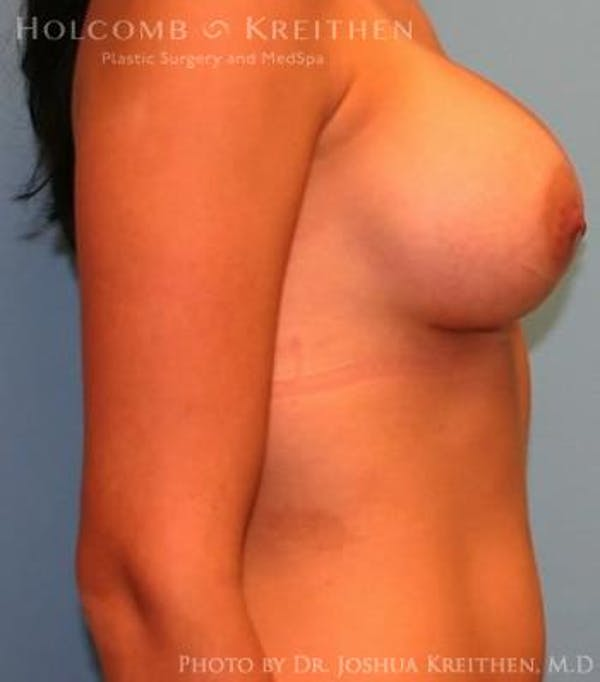 Breast Augmentation Gallery - Patient 6236600 - Image 6