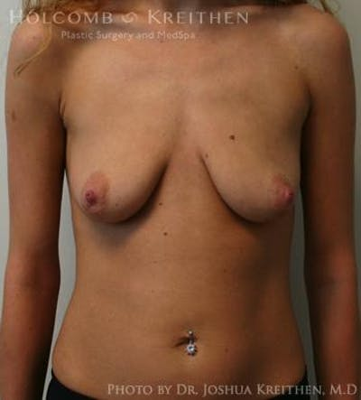 Breast Augmentation Gallery - Patient 6236601 - Image 26
