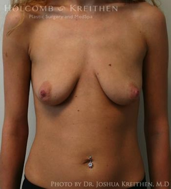 Breast Augmentation Gallery - Patient 6236601 - Image 1