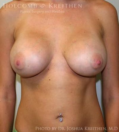 Breast Augmentation Gallery - Patient 6236601 - Image 2