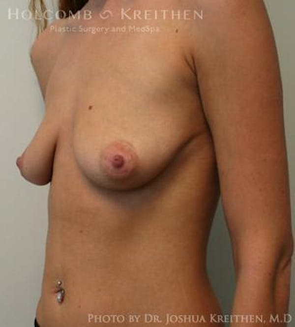 Breast Augmentation Gallery - Patient 6236601 - Image 5