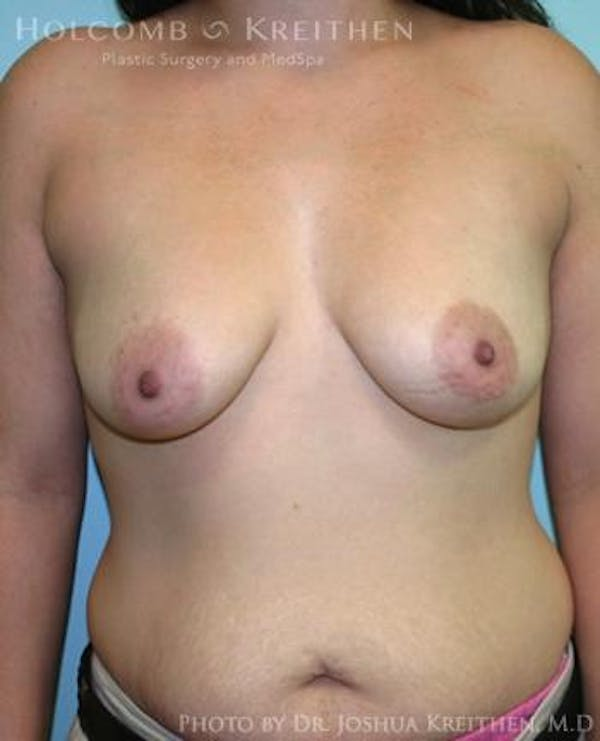 Breast Augmentation Gallery - Patient 6236603 - Image 1