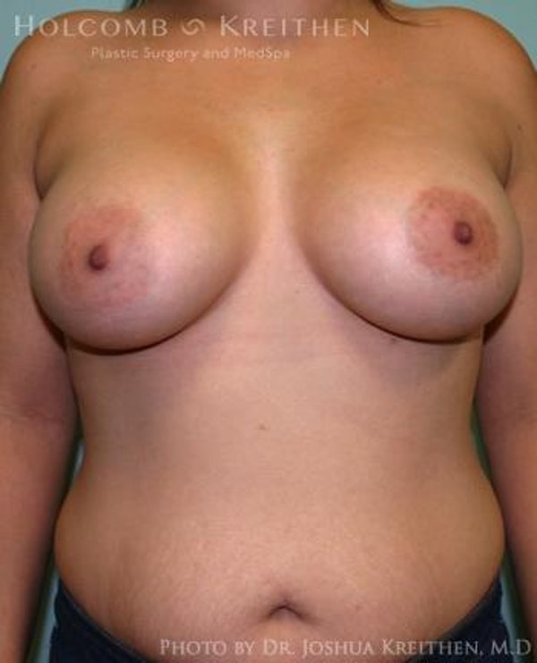 Breast Augmentation Gallery - Patient 6236603 - Image 2