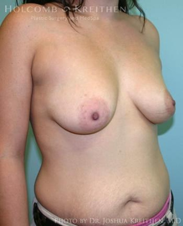 Breast Augmentation Gallery - Patient 6236603 - Image 3