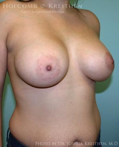 Breast Augmentation Gallery - Patient 6236603 - Image 4