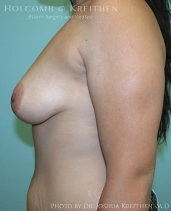 Breast Augmentation Gallery - Patient 6236603 - Image 5