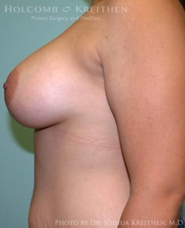 Breast Augmentation Gallery - Patient 6236603 - Image 6