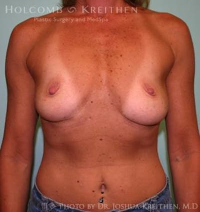 Breast Augmentation Gallery - Patient 6236606 - Image 1