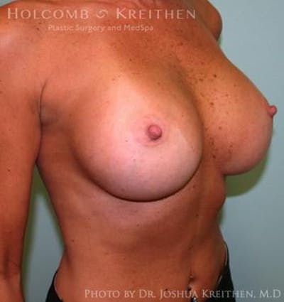 Breast Augmentation Gallery - Patient 6236606 - Image 4