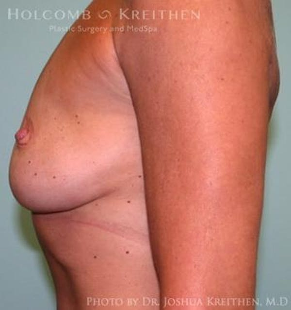 Breast Augmentation Gallery - Patient 6236606 - Image 5