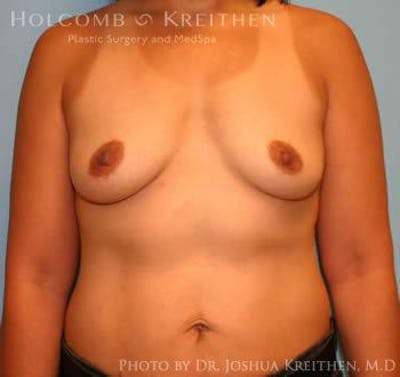 Breast Augmentation Gallery - Patient 6236608 - Image 29