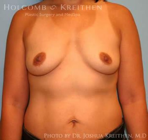 Breast Augmentation Gallery - Patient 6236608 - Image 1