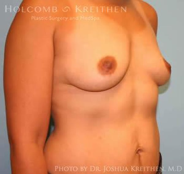 Breast Augmentation Gallery - Patient 6236608 - Image 3