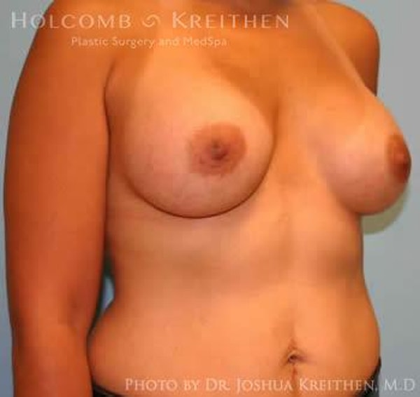 Breast Augmentation Gallery - Patient 6236608 - Image 4