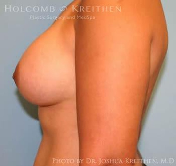 Breast Augmentation Gallery - Patient 6236608 - Image 6