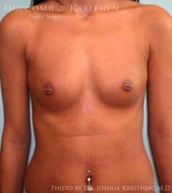 Breast Augmentation Gallery - Patient 6236610 - Image 1