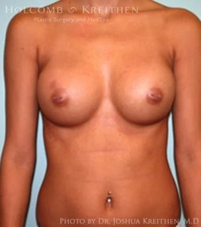 Breast Augmentation Gallery - Patient 6236610 - Image 2
