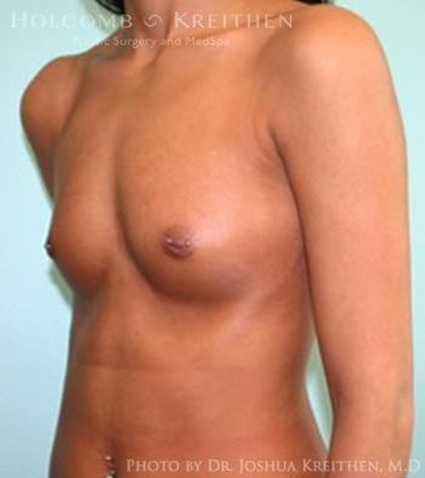 Breast Augmentation Gallery - Patient 6236610 - Image 3