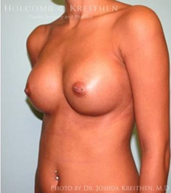 Breast Augmentation Gallery - Patient 6236610 - Image 4