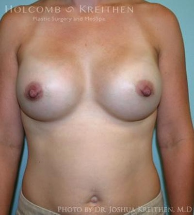 Breast Augmentation Gallery - Patient 6236612 - Image 2