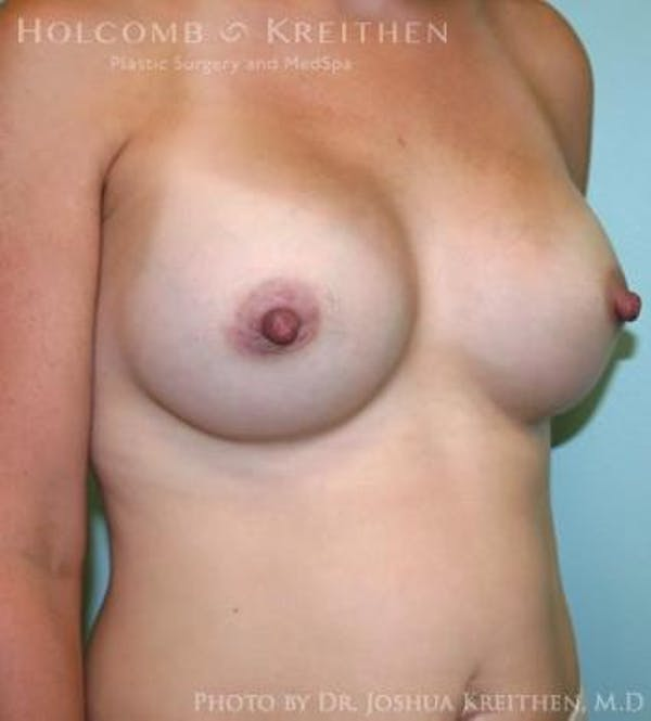 Breast Augmentation Gallery - Patient 6236612 - Image 4