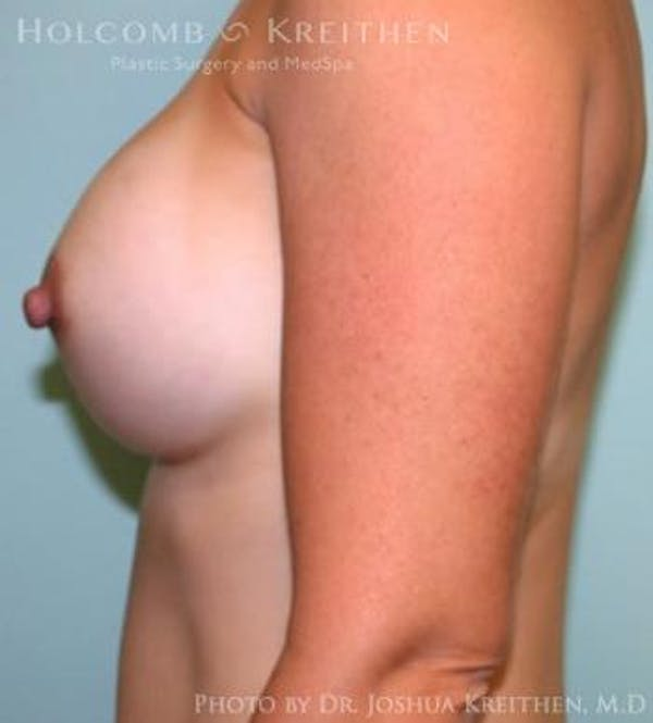 Breast Augmentation Gallery - Patient 6236612 - Image 6