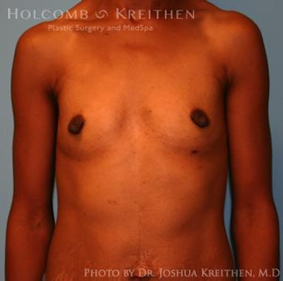 Breast Augmentation Gallery - Patient 6236613 - Image 1