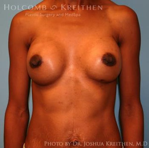 Breast Augmentation Gallery - Patient 6236613 - Image 2