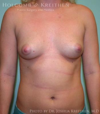 Breast Augmentation Gallery - Patient 6236614 - Image 1
