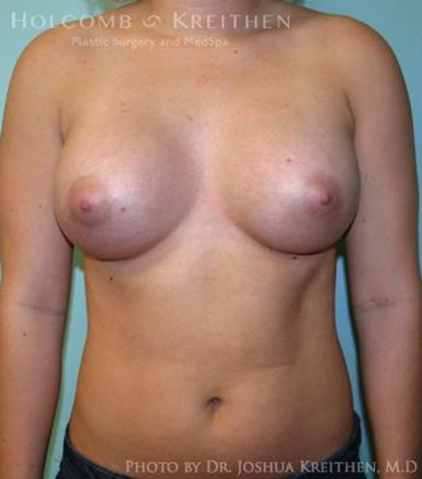 Breast Augmentation Gallery - Patient 6236614 - Image 2