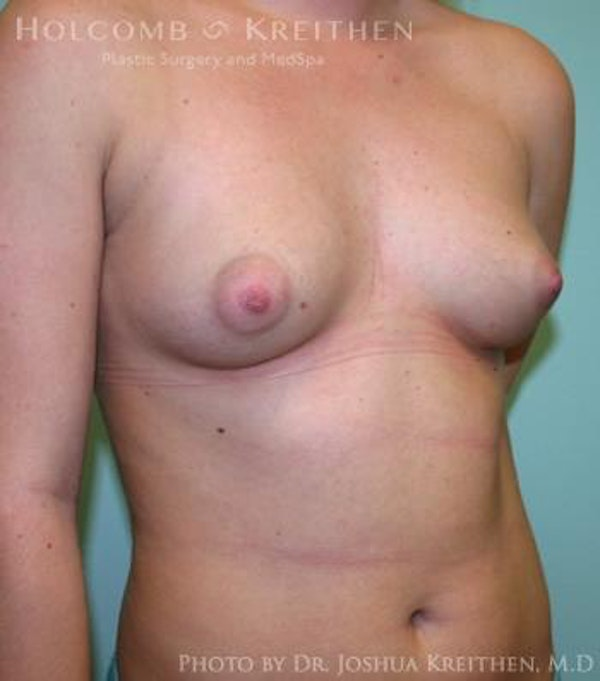 Breast Augmentation Gallery - Patient 6236614 - Image 3