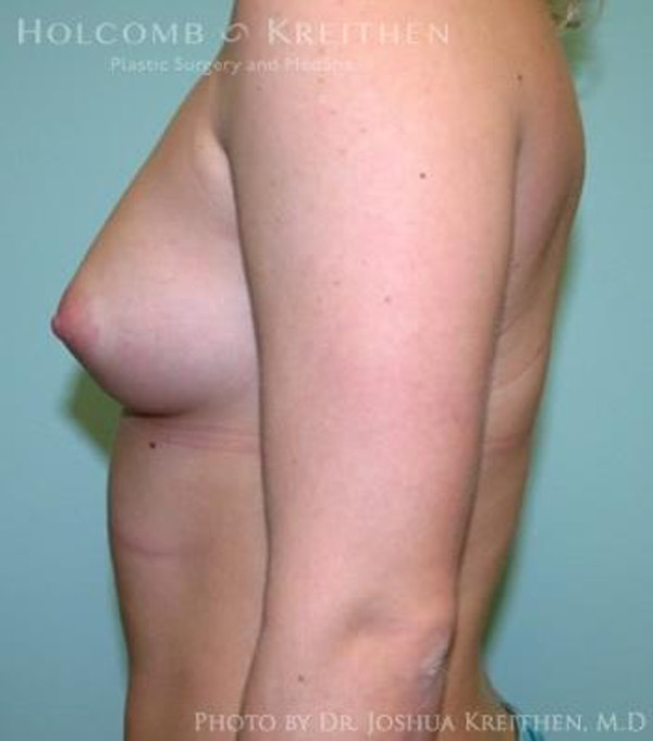 Breast Augmentation Gallery - Patient 6236614 - Image 5