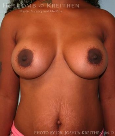 Breast Augmentation Gallery - Patient 6236616 - Image 2