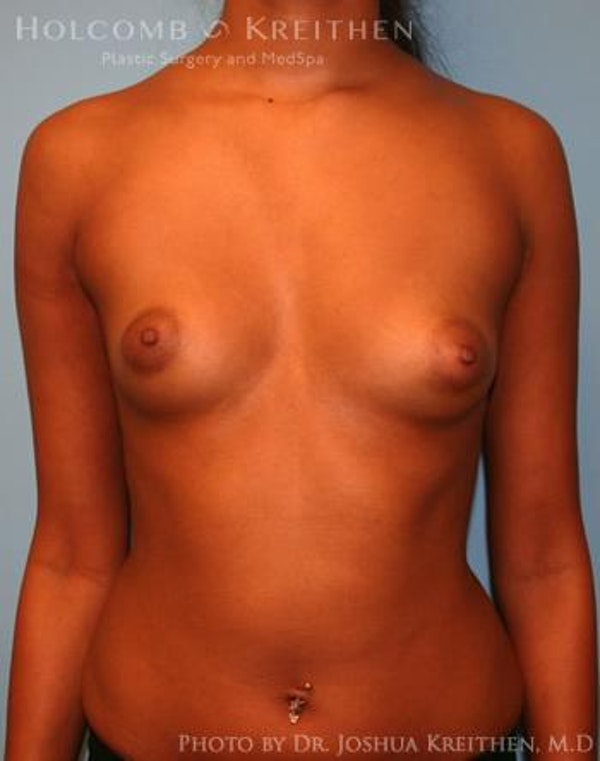 Breast Augmentation Gallery - Patient 6236618 - Image 1